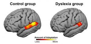 dyslexiahelpforparents